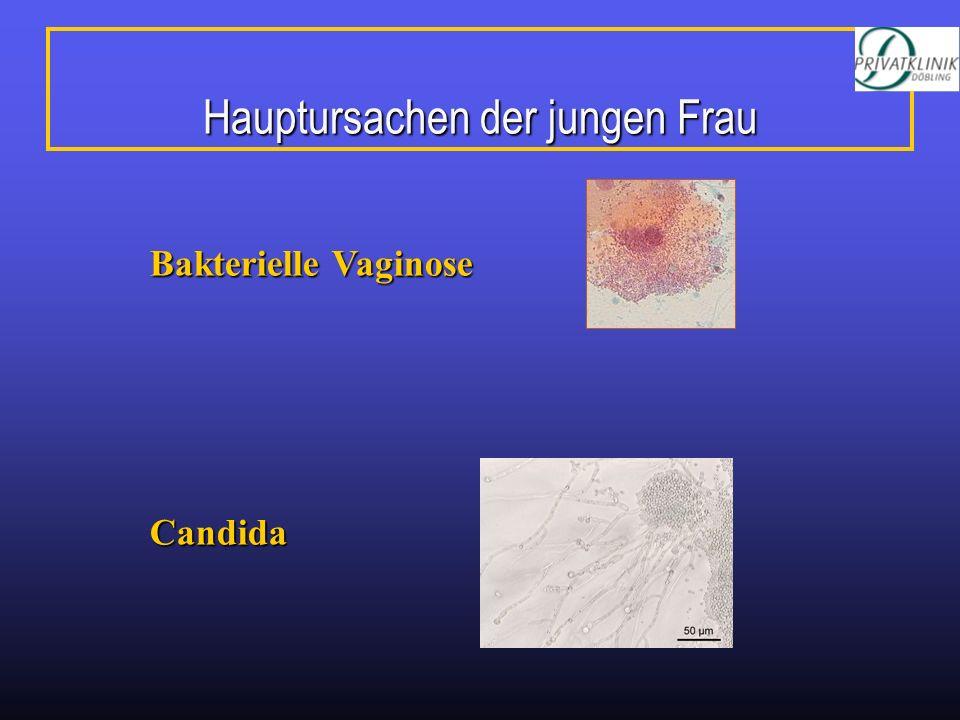 Hauptursachen der jungen Frau Bakterielle Vaginose Candida