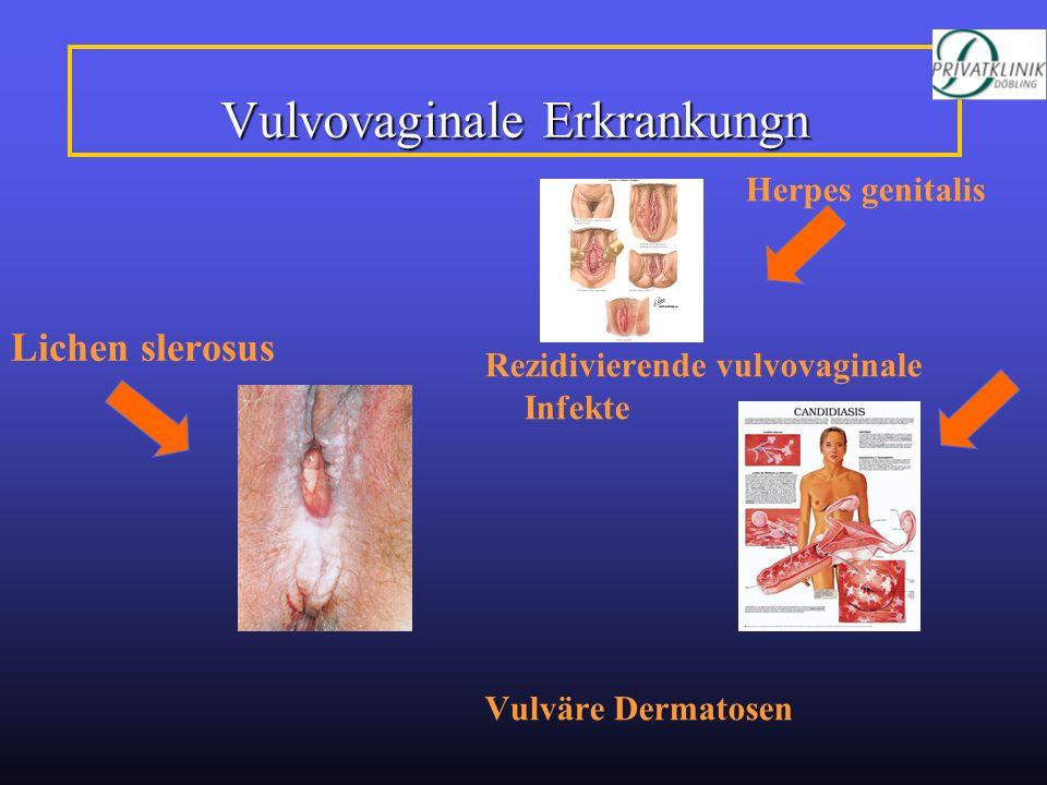 Vulvovaginale Erkrankungn Lichen slerosus Herpes genitalis Rezidivierende vulvovaginale Infekte Vulväre Dermatosen