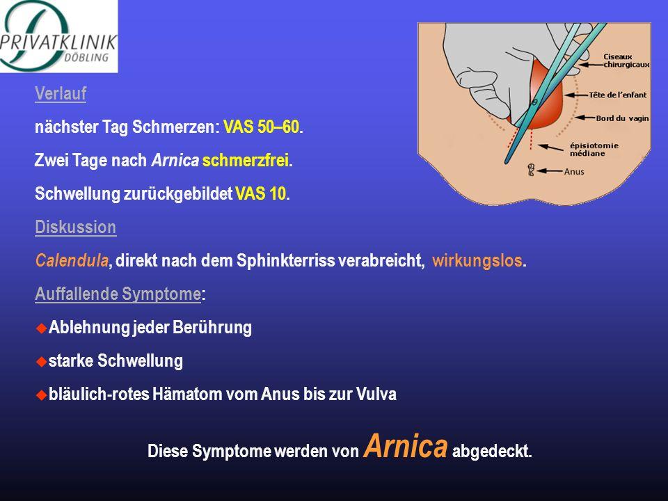 Verlauf nächster Tag Schmerzen: VAS 50–60. Zwei Tage nach Arnica schmerzfrei. Schwellung zurückgebildet VAS 10. Diskussion Calendula, direkt nach dem