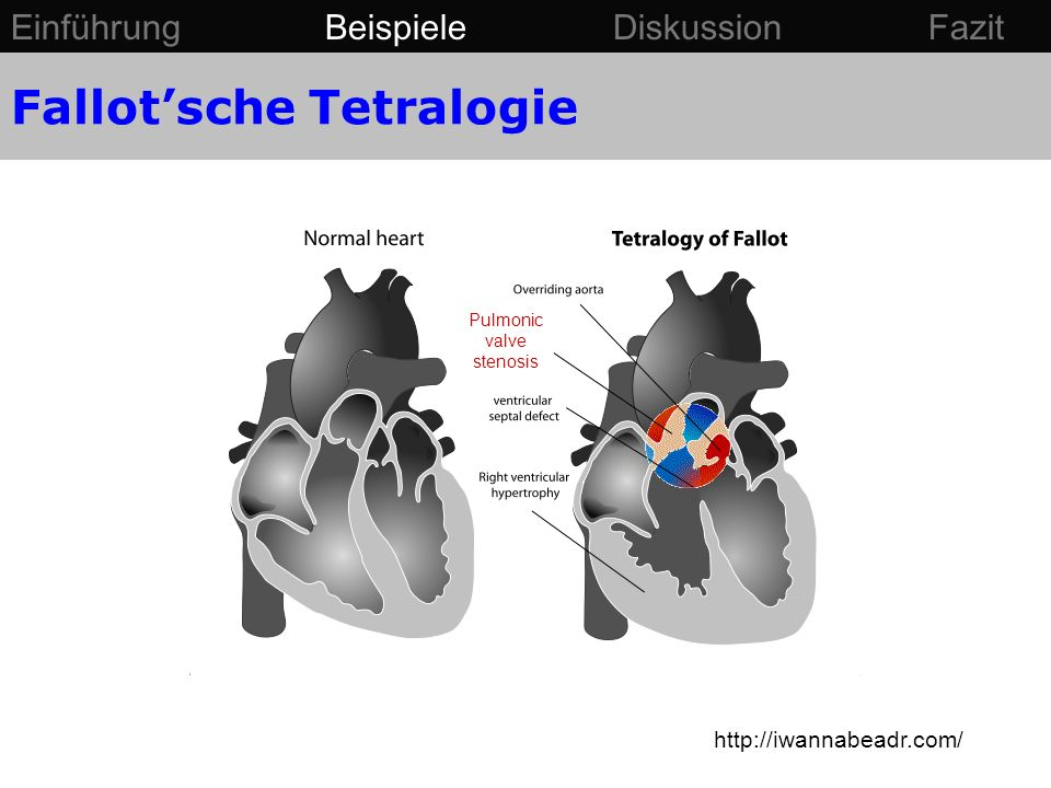 http://iwannabeadr.com/ Pulmonic valve stenosis Fallotsche Tetralogie Einführung Beispiele Diskussion Fazit