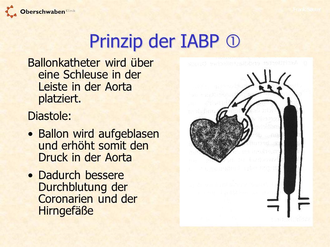 Frank Sauter Prinzip der IABP Prinzip der IABP Ballonkatheter wird über eine Schleuse in der Leiste in der Aorta platziert. Diastole: Ballon wird aufg