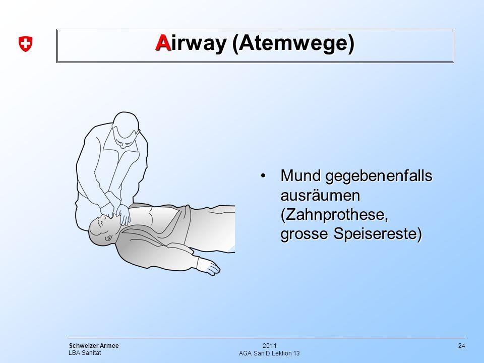 24 Schweizer Armee LBA Sanität 2011 AGA San D Lektion 13 Airway (Atemwege) Mund gegebenenfalls ausräumenMund gegebenenfalls ausräumen (Zahnprothese, g