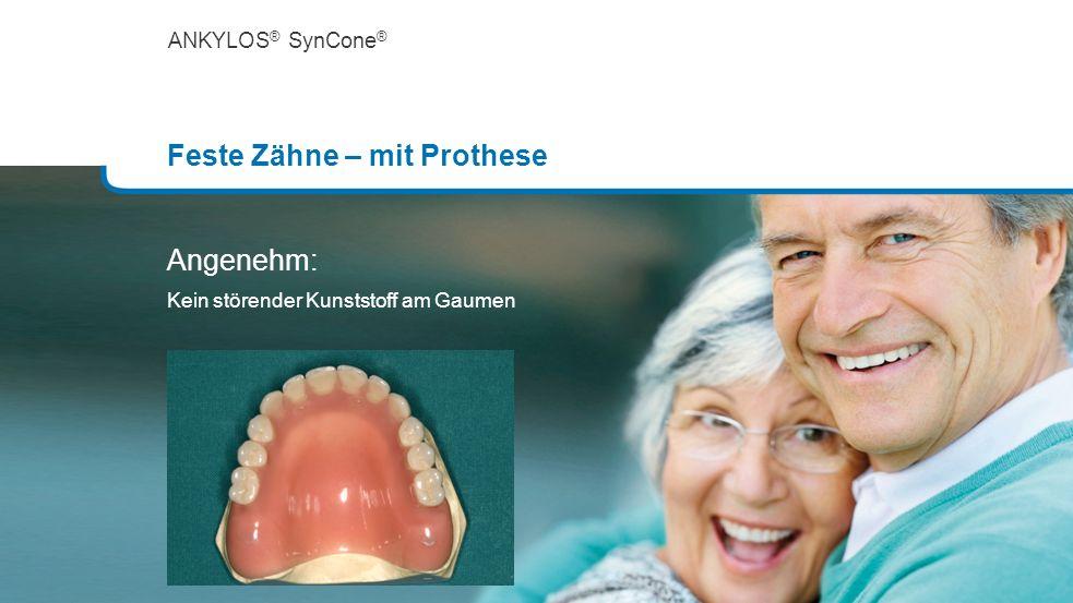 ANKYLOS ® SynCone ® Feste Zähne – mit Prothese Angenehm: Kein störender Kunststoff am Gaumen