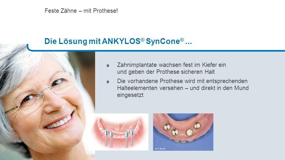 Zahnimplantate wachsen fest im Kiefer ein und geben der Prothese sicheren Halt Die vorhandene Prothese wird mit entsprechenden Halteelementen versehen