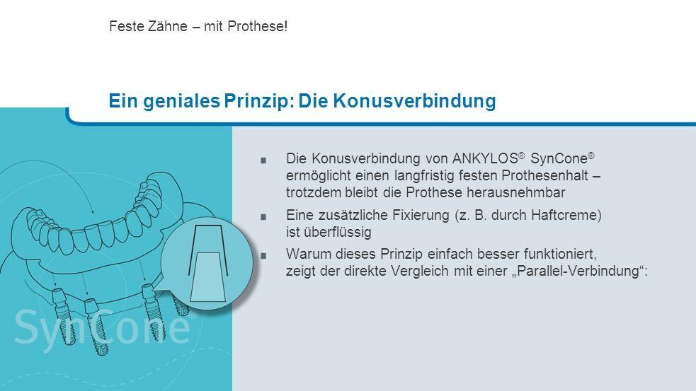 Die Konusverbindung von ANKYLOS ® SynCone ® ermöglicht einen langfristig festen Prothesenhalt – trotzdem bleibt die Prothese herausnehmbar Eine zusätz