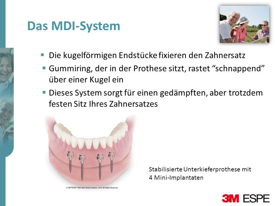 Das MDI-System Die kugelförmigen Endstücke fixieren den Zahnersatz Gummiring, der in der Prothese sitzt, rastet schnappend über einer Kugel ein Dieses
