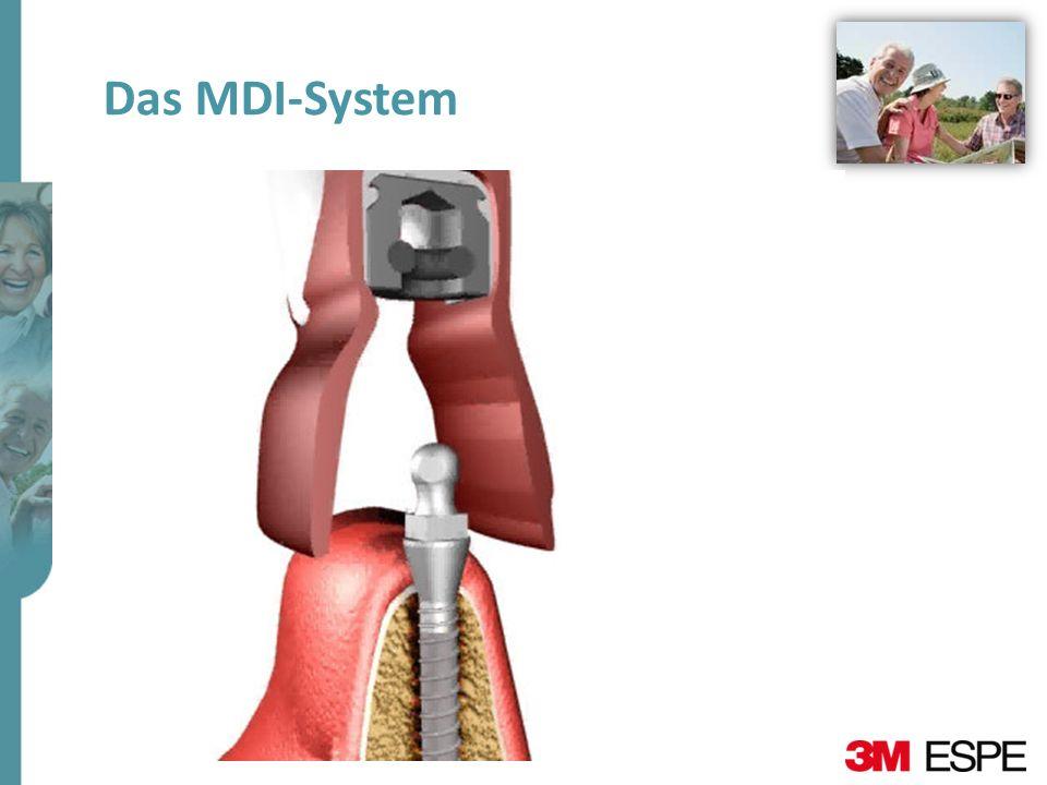 Das MDI-System