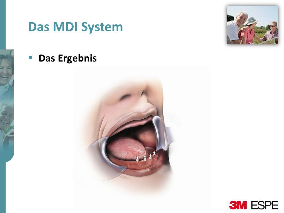 Das MDI System Das Ergebnis