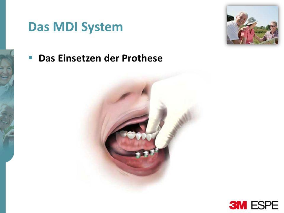 Das MDI System Das Einsetzen der Prothese