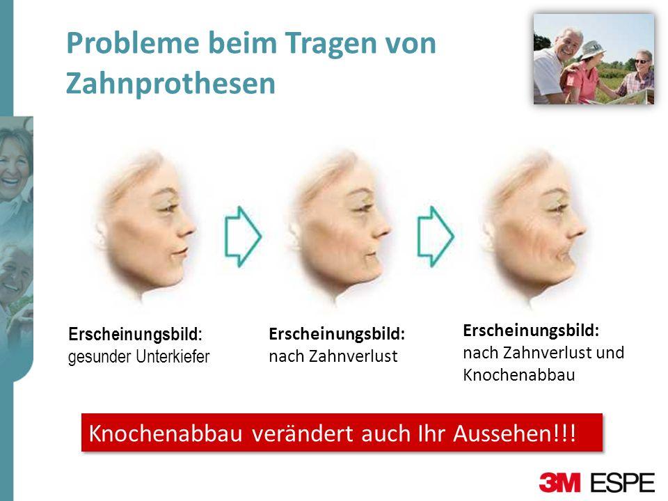 Probleme beim Tragen von Zahnprothesen Erscheinungsbild: gesunder Unterkiefer Erscheinungsbild: nach Zahnverlust Erscheinungsbild: nach Zahnverlust un
