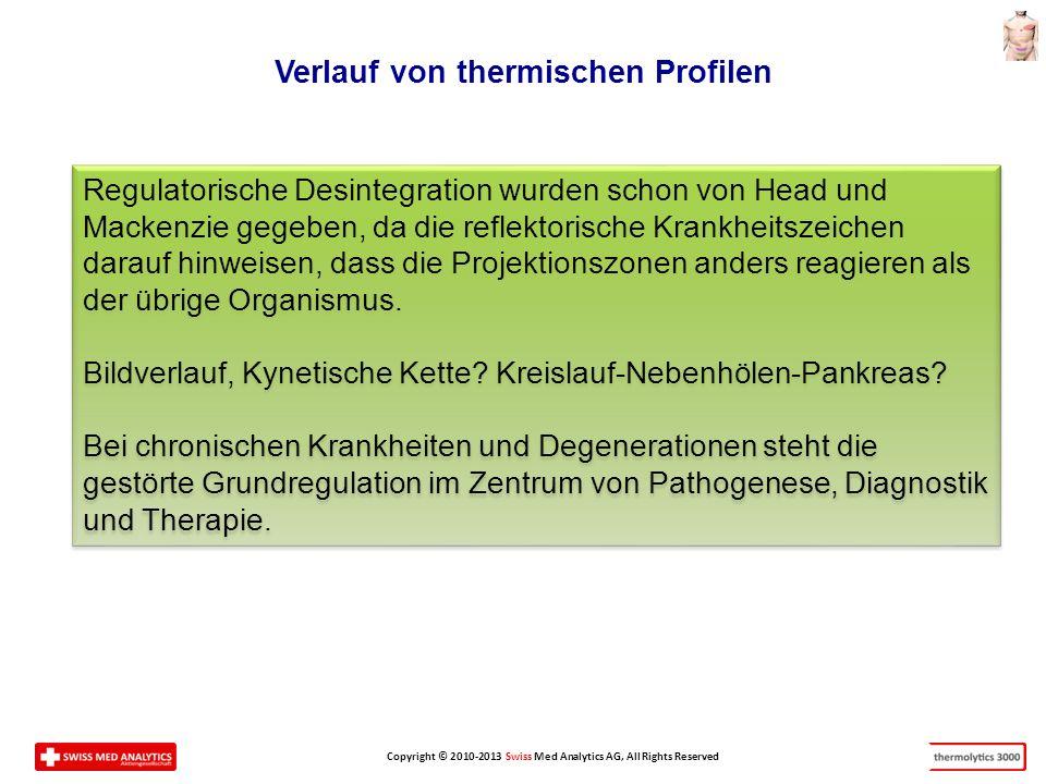 Copyright © 2010-2013 Swiss Med Analytics AG, All Rights Reserved Verlauf von thermischen Profilen Regulatorische Desintegration wurden schon von Head und Mackenzie gegeben, da die reflektorische Krankheitszeichen darauf hinweisen, dass die Projektionszonen anders reagieren als der übrige Organismus.