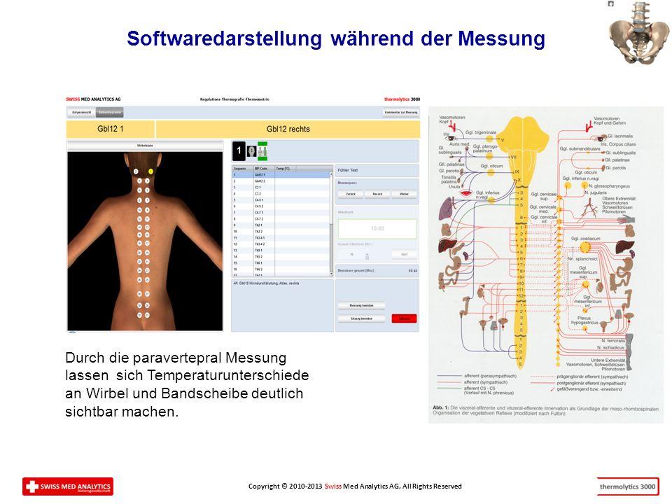 Copyright © 2010-2013 Swiss Med Analytics AG, All Rights Reserved Softwaredarstellung während der Messung Durch die paravertepral Messung lassen sich Temperaturunterschiede an Wirbel und Bandscheibe deutlich sichtbar machen.