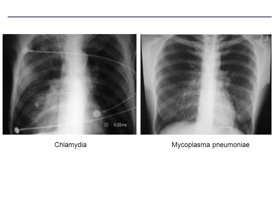 Legionella – selten, aber sehr kompliziert 0 h., Lungenbeschwerden, Verdacht: Chlamydien, Mycoplasmen 12 h.