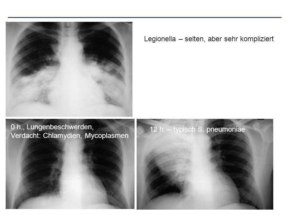 Legionella – selten, aber sehr kompliziert 0 h., Lungenbeschwerden, Verdacht: Chlamydien, Mycoplasmen 12 h. – typisch S. pneumoniae