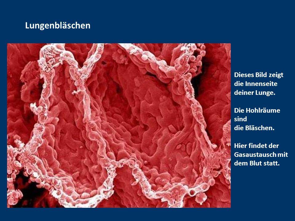 Blutgerinnsel Erinnert Ihr Euch noch an das schöne Foto der roten Blutkörperchen vom Anfang? Nun, hier sehen wir, wie diese Zellen in einem klebrigen