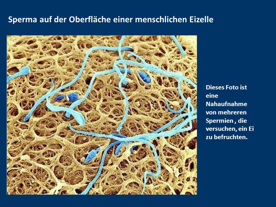 Menschliche Eizelle Dieses Bild zeigt eine menschliche lila Eizelle. Das Ei ist bedeckt von einem Netz namens Pellicuda, ein Glykoprotein, das das Ei