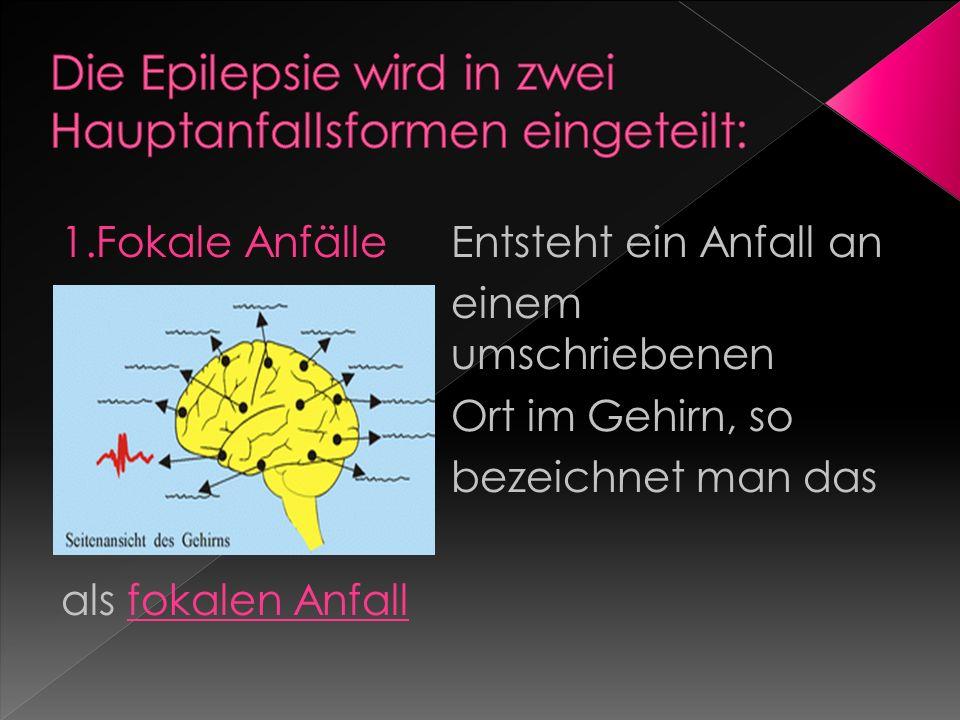 1.Fokale Anfälle Entsteht ein Anfall an einem umschriebenen Ort im Gehirn, so bezeichnet man das als fokalen Anfall