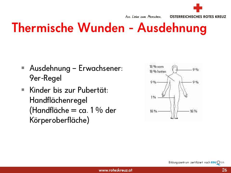 www.roteskreuz.at Bildungszentrumzertifiziert nach Thermische Wunden - Ausdehnung Ausdehnung – Erwachsener: 9er-Regel Kinder bis zur Pubertät: Handflächenregel (Handfläche = ca.