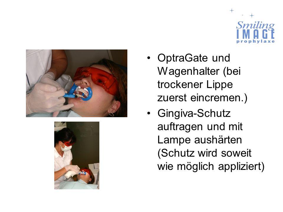 OptraGate und Wagenhalter (bei trockener Lippe zuerst eincremen.) Gingiva-Schutz auftragen und mit Lampe aushärten (Schutz wird soweit wie möglich app