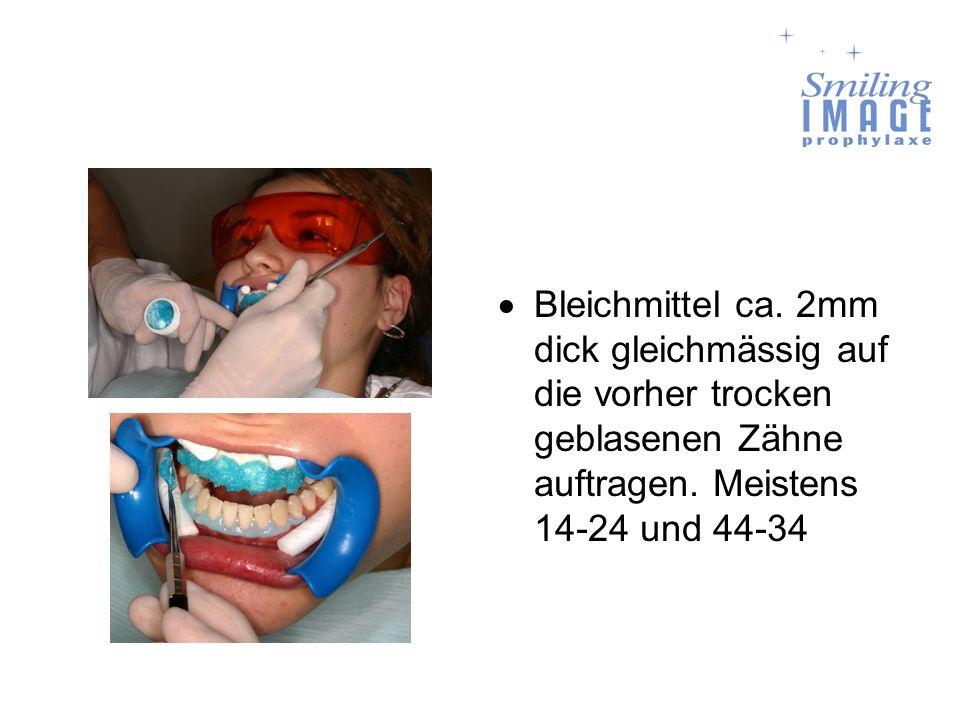 Bleichmittel ca. 2mm dick gleichmässig auf die vorher trocken geblasenen Zähne auftragen. Meistens 14-24 und 44-34