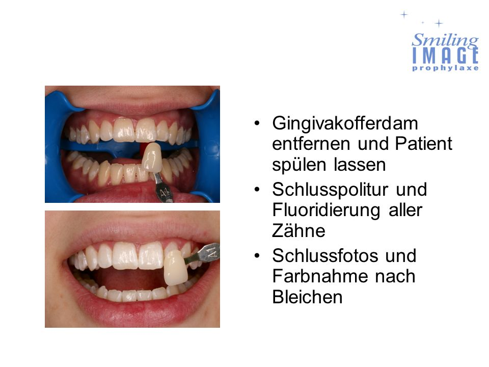 Gingivakofferdam entfernen und Patient spülen lassen Schlusspolitur und Fluoridierung aller Zähne Schlussfotos und Farbnahme nach Bleichen