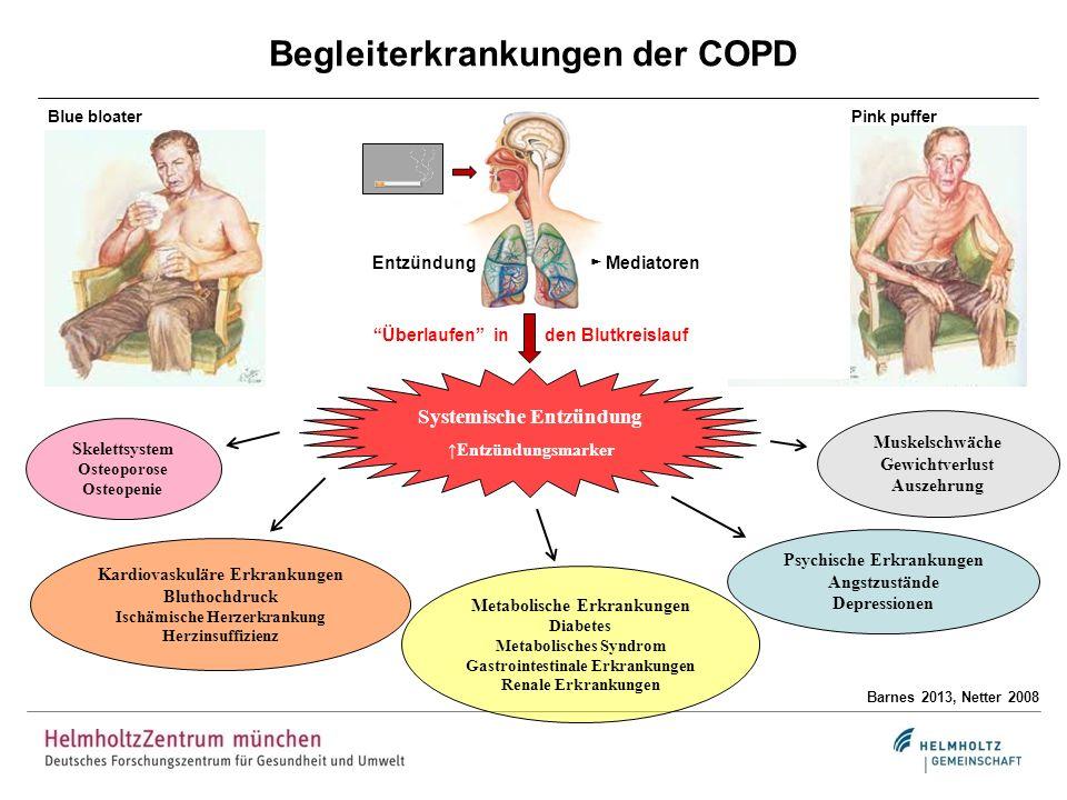 Begleiterkrankungen der COPD Barnes 2013, Netter 2008 Entzündung Mediatoren Überlaufen in den Blutkreislauf Systemische Entzündung Entzündungsmarker B