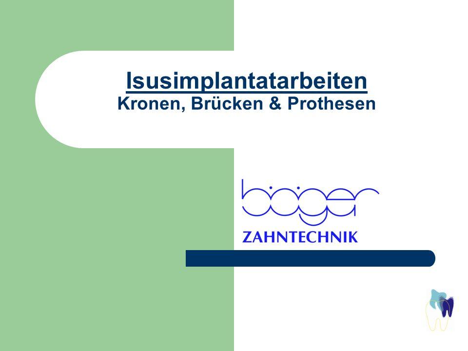 Isusimplantatarbeiten Kronen, Brücken & Prothesen