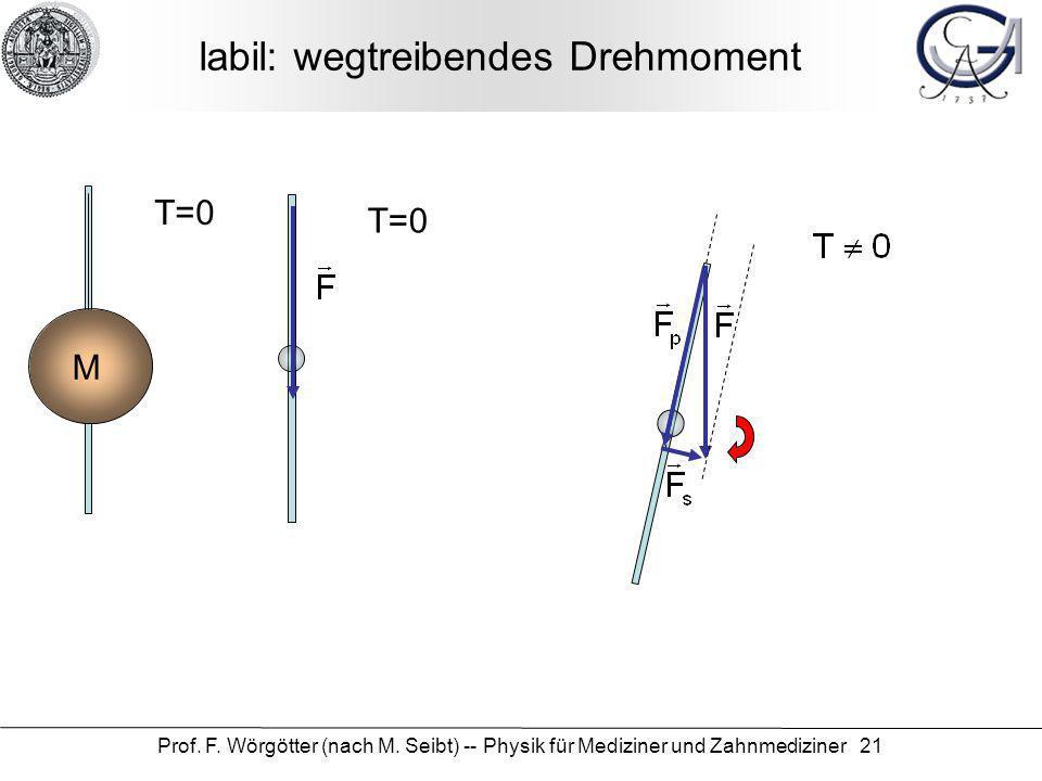 Prof. F. Wörgötter (nach M. Seibt) -- Physik für Mediziner und Zahnmediziner 21 labil: wegtreibendes Drehmoment M T=0