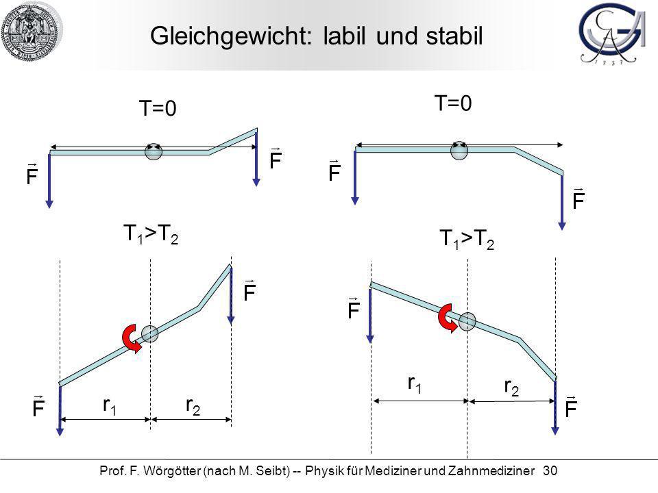 Prof. F. Wörgötter (nach M. Seibt) -- Physik für Mediziner und Zahnmediziner 30 Gleichgewicht: labil und stabil T=0 r1r1 r2r2 T 1 >T 2 T=0 r1r1 r2r2 T