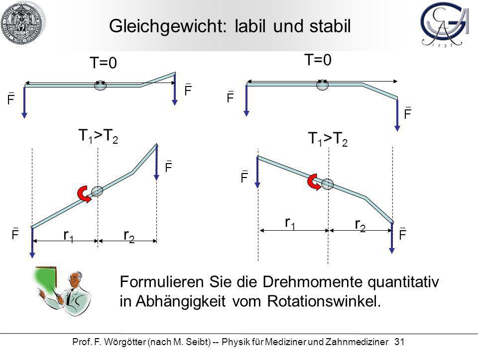 Prof. F. Wörgötter (nach M. Seibt) -- Physik für Mediziner und Zahnmediziner 31 Gleichgewicht: labil und stabil T=0 r1r1 r2r2 T 1 >T 2 T=0 r1r1 r2r2 T