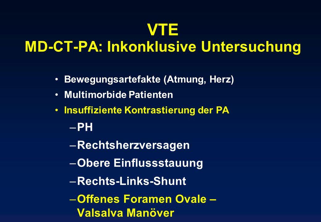 VTE MD-CT-PA: Inkonklusive Untersuchung Bewegungsartefakte (Atmung, Herz) Multimorbide Patienten Insuffiziente Kontrastierung der PA –PH –Rechtsherzve