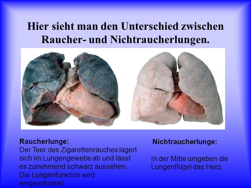Hier sieht man den Unterschied zwischen Raucher- und Nichtraucherlungen. Nichtraucherlunge: In der Mitte umgeben die Lungenflügel das Herz. Raucherlun