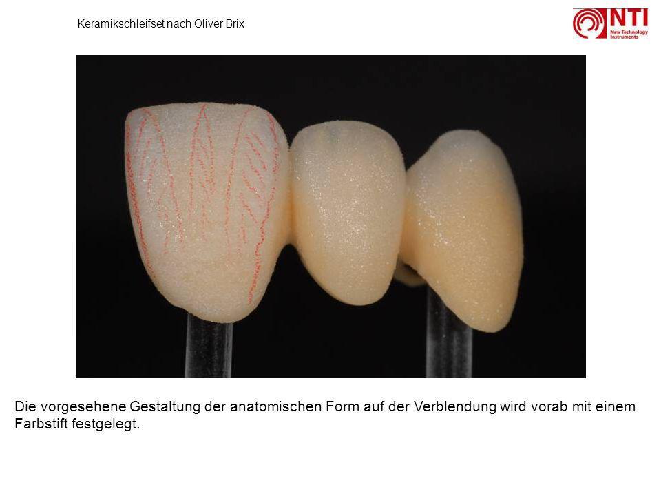 Die vorgesehene Gestaltung der anatomischen Form auf der Verblendung wird vorab mit einem Farbstift festgelegt. Keramikschleifset nach Oliver Brix