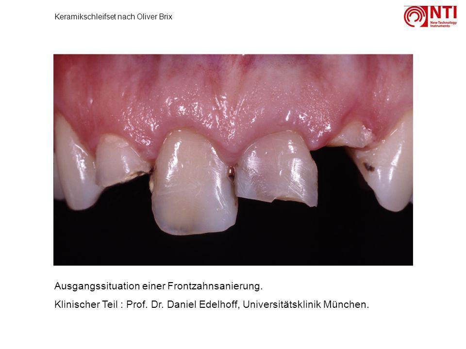 Ausgangssituation einer Frontzahnsanierung. Klinischer Teil : Prof. Dr. Daniel Edelhoff, Universitätsklinik München. Keramikschleifset nach Oliver Bri
