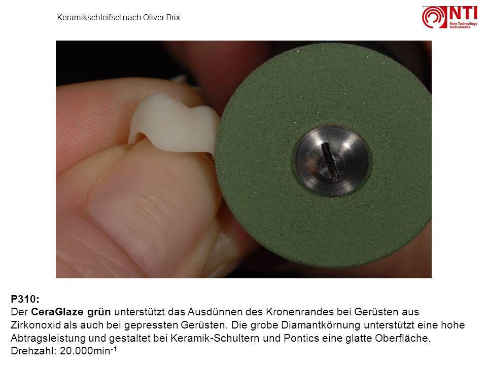 P310: Der CeraGlaze grün unterstützt das Ausdünnen des Kronenrandes bei Gerüsten aus Zirkonoxid als auch bei gepressten Gerüsten. Die grobe Diamantkör