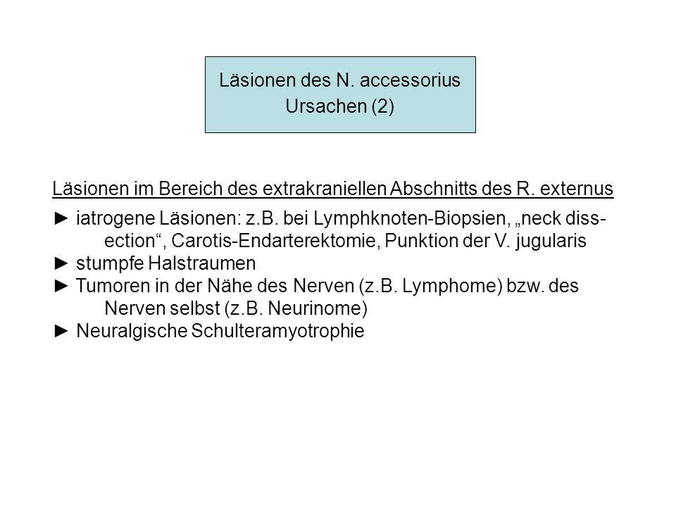 Läsionen des N. accessorius Ursachen (2) Läsionen im Bereich des extrakraniellen Abschnitts des R. externus iatrogene Läsionen: z.B. bei Lymphknoten-B