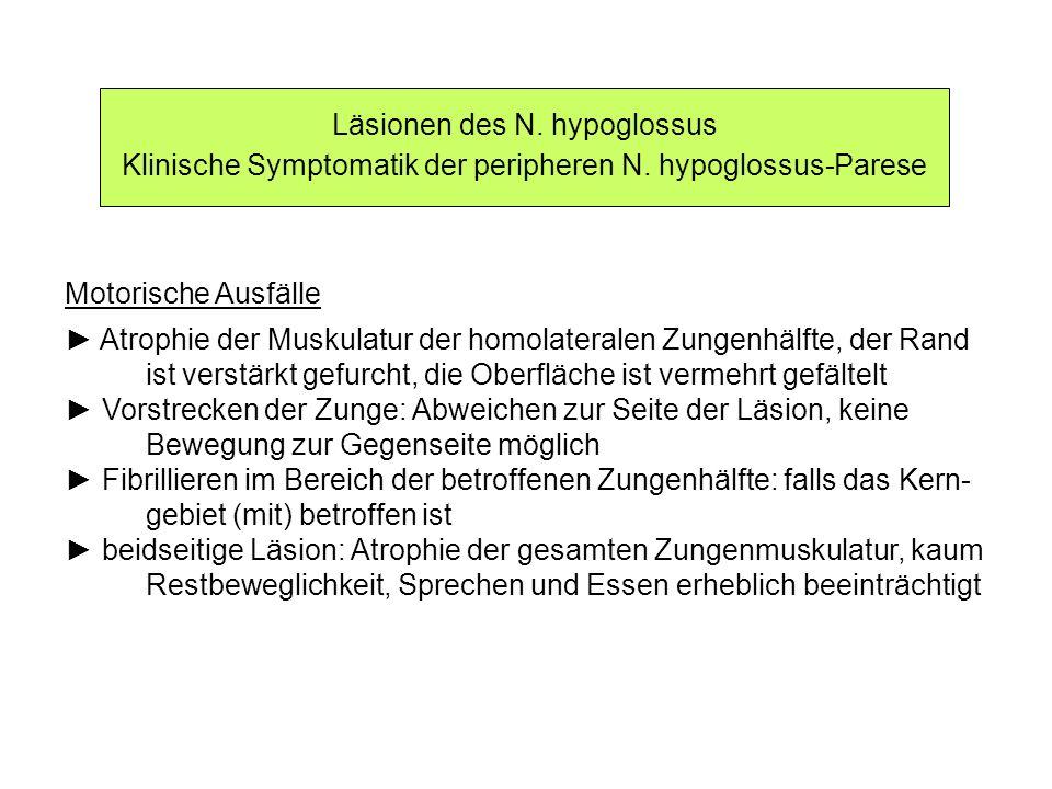 Läsionen des N. hypoglossus Klinische Symptomatik der peripheren N. hypoglossus-Parese Motorische Ausfälle Atrophie der Muskulatur der homolateralen Z