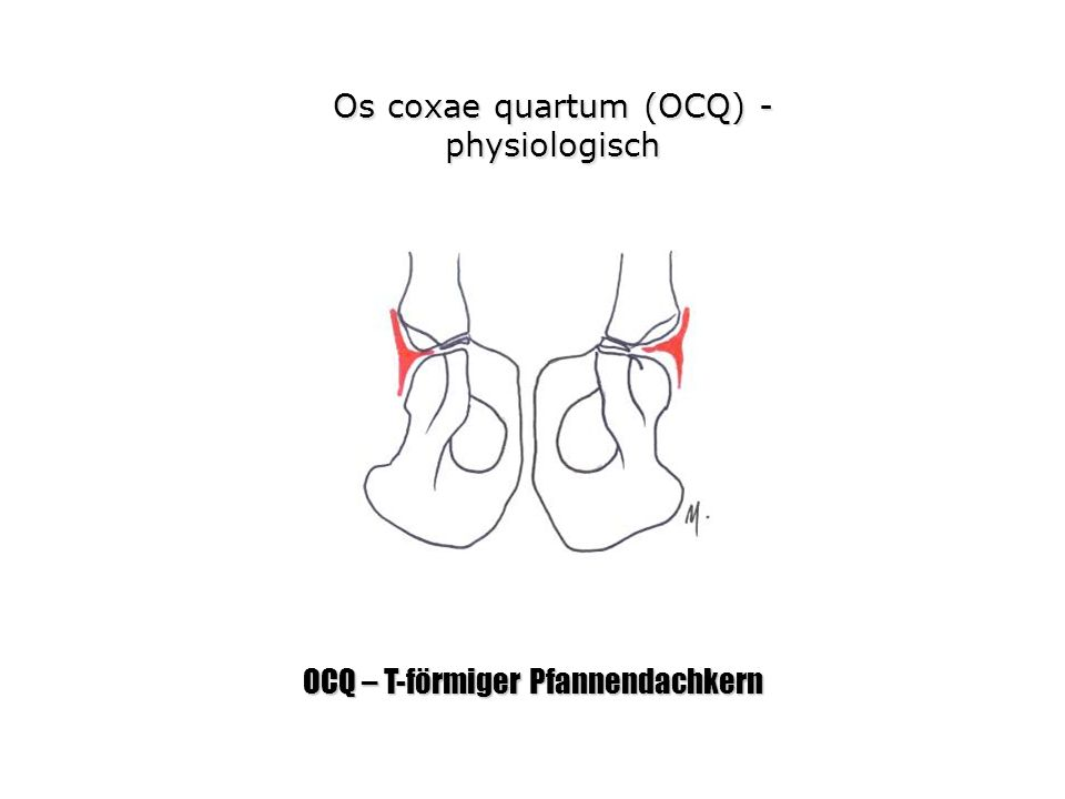 Os coxae quartum (OCQ) - physiologisch OCQ – T-förmiger Pfannendachkern