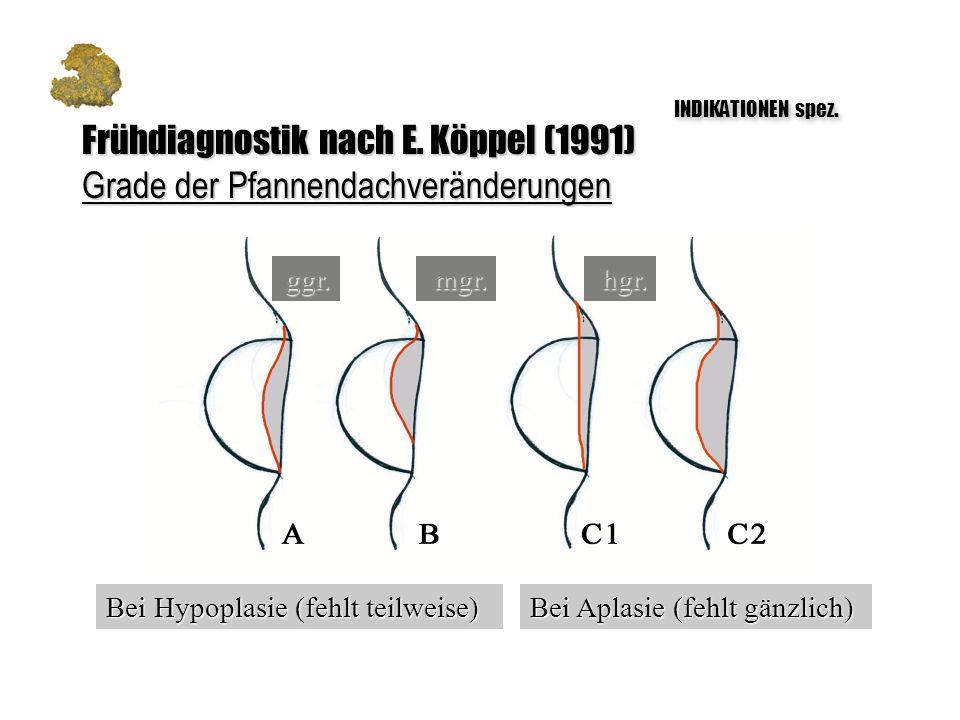 hgr.mgr.ggr. Bei Aplasie (fehlt gänzlich) Bei Hypoplasie (fehlt teilweise) Frühdiagnostik nach E. Köppel (1991) Grade der Pfannendachveränderungen IND