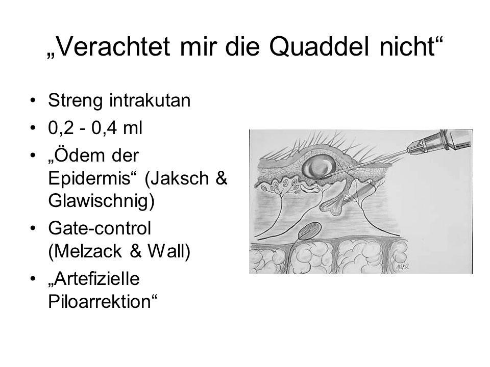 Verachtet mir die Quaddel nicht Streng intrakutan 0,2 - 0,4 ml Ödem der Epidermis (Jaksch & Glawischnig) Gate-control (Melzack & Wall) Artefizielle Pi