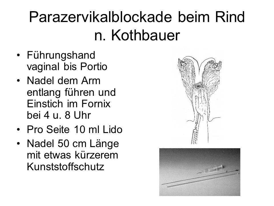 Parazervikalblockade beim Rind n. Kothbauer Führungshand vaginal bis Portio Nadel dem Arm entlang führen und Einstich im Fornix bei 4 u. 8 Uhr Pro Sei