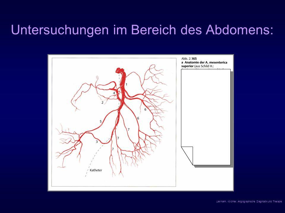 Untersuchungen im Bereich des Abdomens: Liermann, Kirchner; Angiographische Diagnostik und Therapie