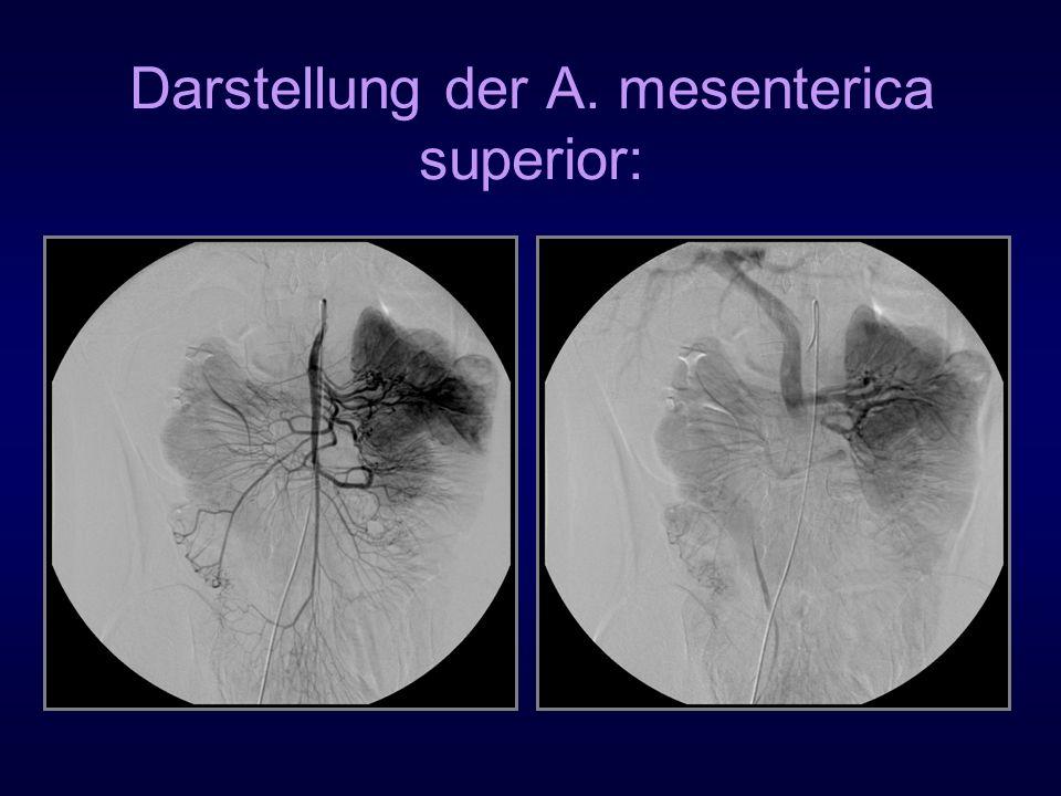 Darstellung der A. mesenterica superior: