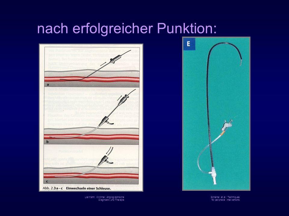 nach erfolgreicher Punktion: Liermann, Kirchner; Angiographische Diagnostik und Therapie Scheiner et al ; Techniques for peripheral Interventions