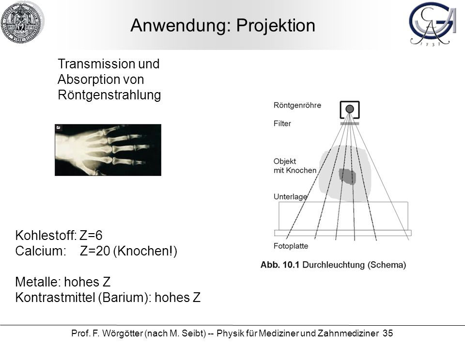 Prof. F. Wörgötter (nach M. Seibt) -- Physik für Mediziner und Zahnmediziner 35 Anwendung: Projektion Transmission und Absorption von Röntgenstrahlung
