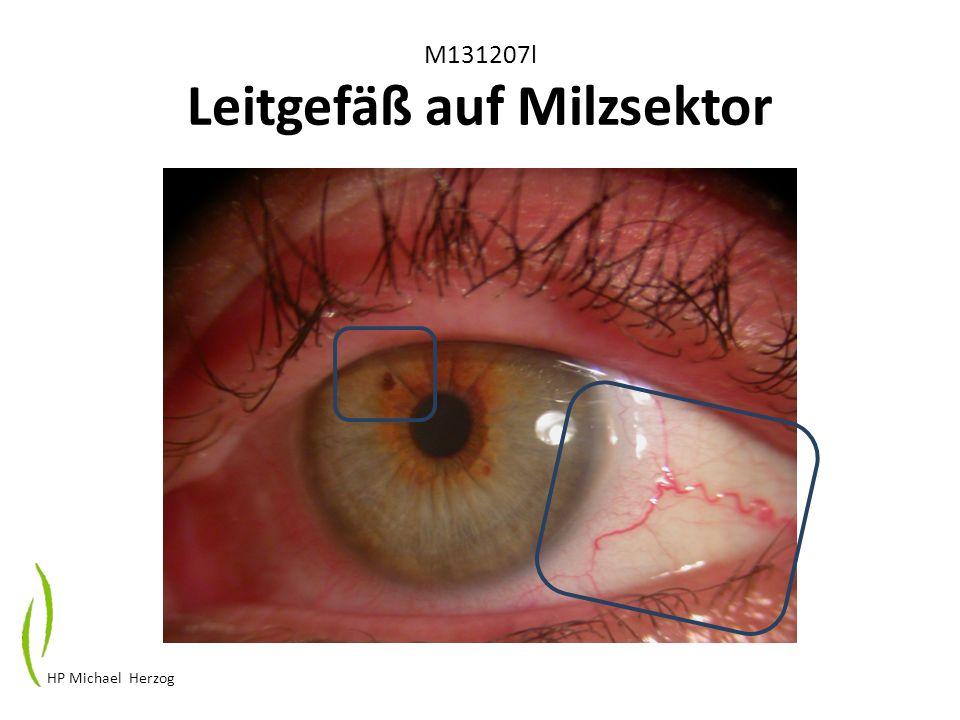 M131207l Leitgefäß auf Milzsektor HP Michael Herzog