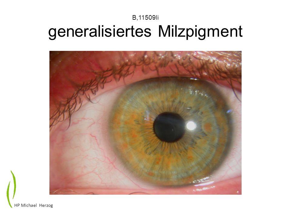 B,11509li generalisiertes Milzpigment HP Michael Herzog