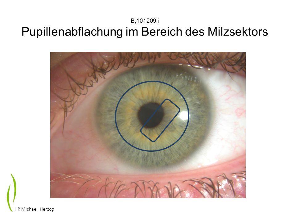 B,101209li Pupillenabflachung im Bereich des Milzsektors HP Michael Herzog