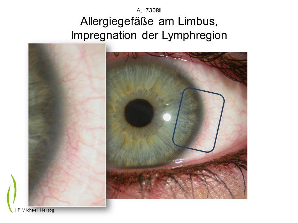 A,17308li Allergiegefäße am Limbus, Impregnation der Lymphregion HP Michael Herzog