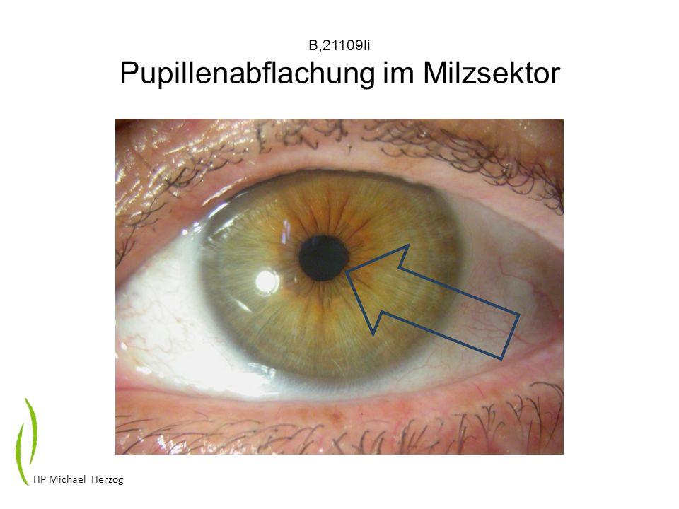 B,21109li Pupillenabflachung im Milzsektor HP Michael Herzog